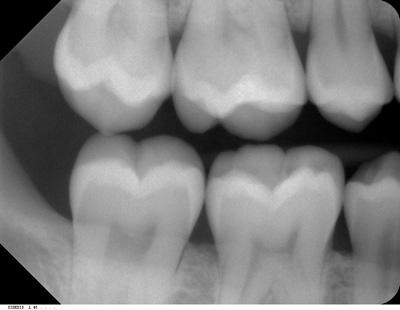 Dentist Brantford On Clarence Street Dental Group Do