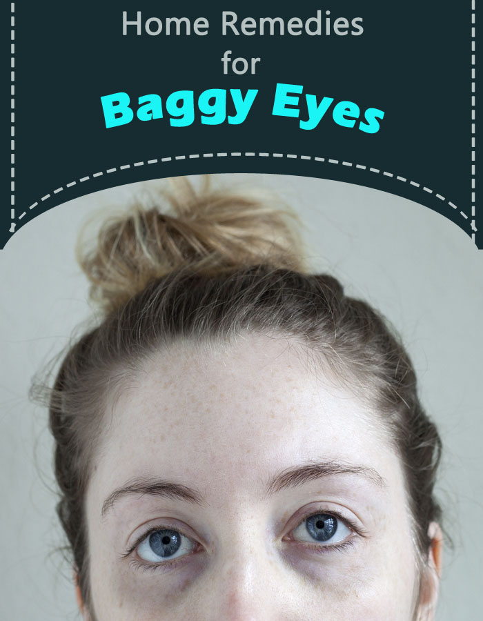 Home Remedies for Baggy Eyes