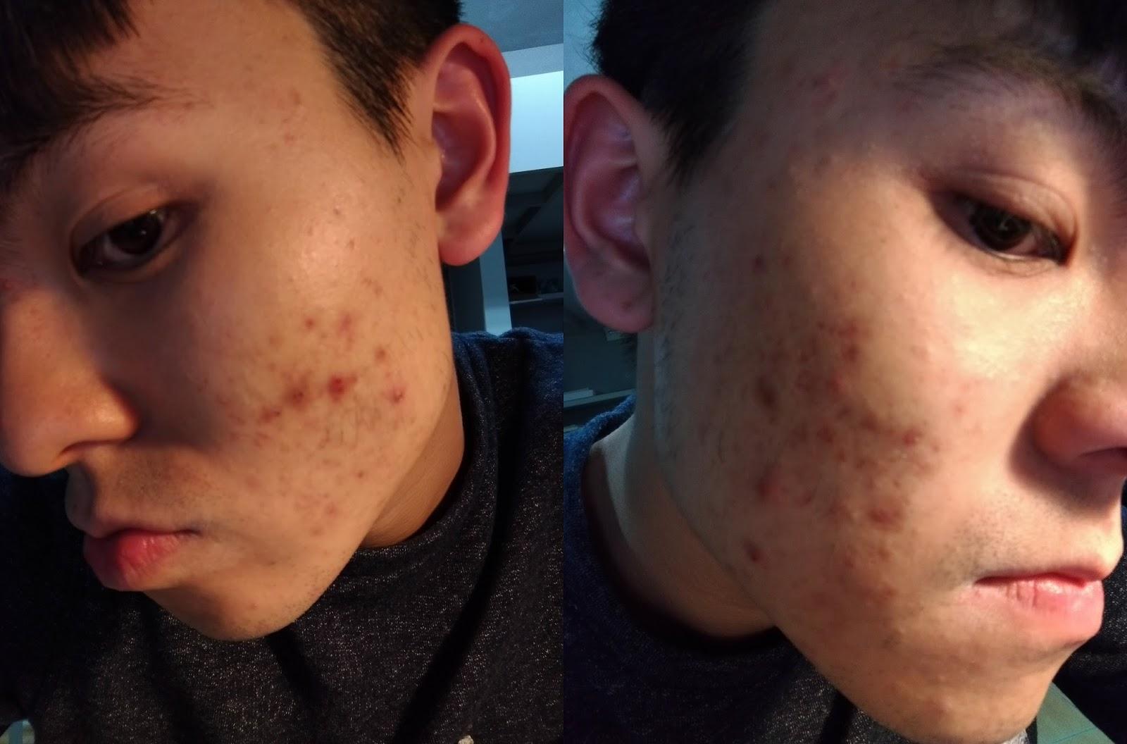 P 20170303 212752 - [心得] 台南林炳煌皮膚科 - 痘痘看診、初診心得