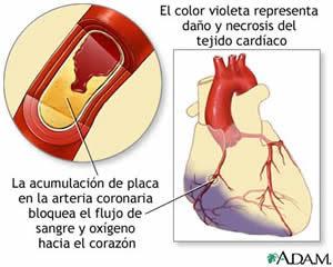 Enfermedad coronaria microvascular