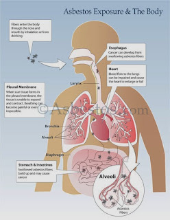 How Asbestos And Cancer Are Related