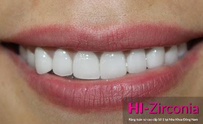 những điều cần biết về bọc răng sứ -9
