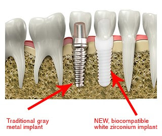 The problems following a titanium dental implant