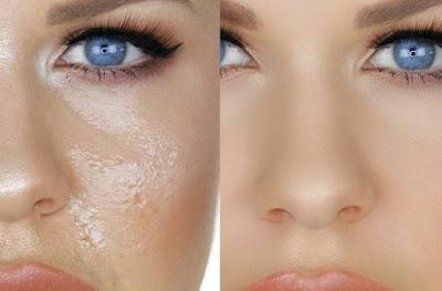 no more oily skin