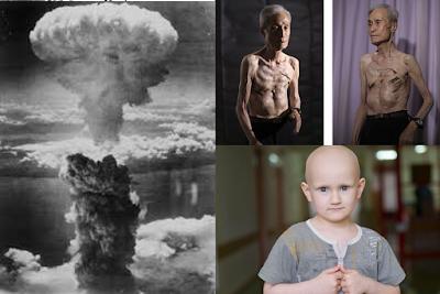 Efectos-de-la-Radioactividad-en-el-ser-humano