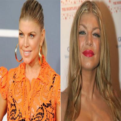 fotos-de-famosas-que-ja-fizeram-botox