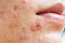 All About Acne: Symptoms, Types, Cause and Treatment