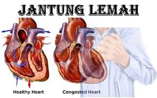Penyebab Lemah Jantung