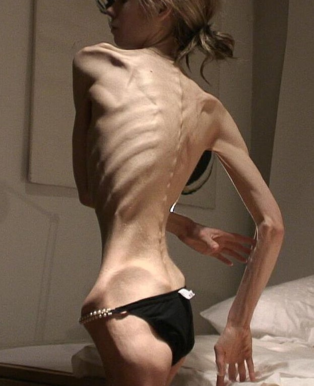 Karen Carpenter When She Was Thin