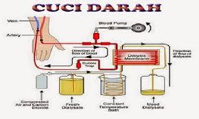 Hemodialisis / Cuci Darah Penderita Gagal Ginjal