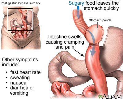it new's : stomach ulcer - ( causes /symptoms / diagnosed, Skeleton