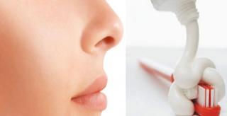 Trik Bersihkan Komedo Membandel dengan Sikat Gigi