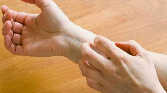Penyebab Kamu Terserang Gatal-Gatal kulit