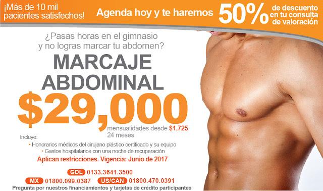 abdomen de lavadero lipo abdomen marcaje precio cirugia guadalajara