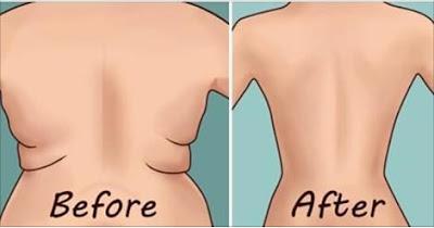 Eliminar los rollitos de la espalda