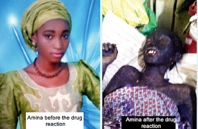 How Nigerian Girl, Amina, Died of Stevens-Johnson Syndrome after Buying Drugs from Quack Chemist