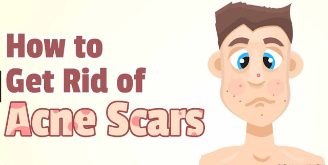 how-to-get-rid-back-your-acne