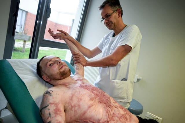 Burnt Alive Man was saved by skin transplants.