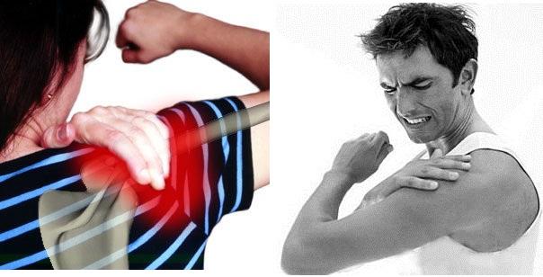 image-Douleurs-aux-épaules