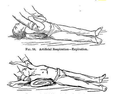 Asthma History: 1750-1950: Methods of Manual Resuscitation