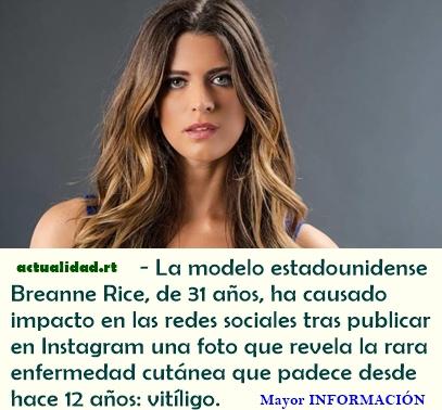 FOTO: Una modelo muestra su verdadero rostro y causa impacto en las redes