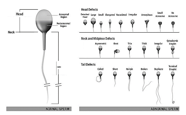 Contoh kelainan bentuk sperma