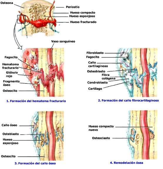 Tejido óseo fractura y reparación de hueso