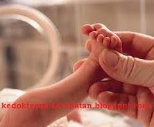 Perkembangan bayi prematur usia 1 bulan