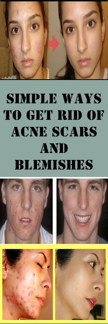 Simple Ways To Get Rid Of Acne Scars And Blemishes
