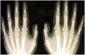 Röntgenin icadı