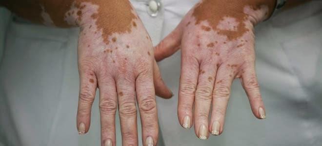 El mundo entero celebra esta noticia:Médicos logran cura para  el vitiligo. Sepa los detalles