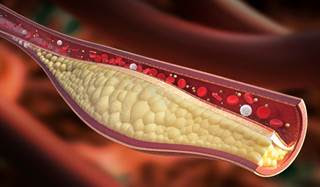 High Triglycerides Levels: Symptoms, Causes