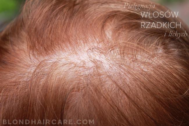 Włosy Rzadkie I Delikatne Jak Je Wzmocnić I Zagęścić