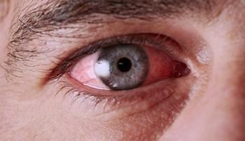 Cara Mengatasi Mata Gatal
