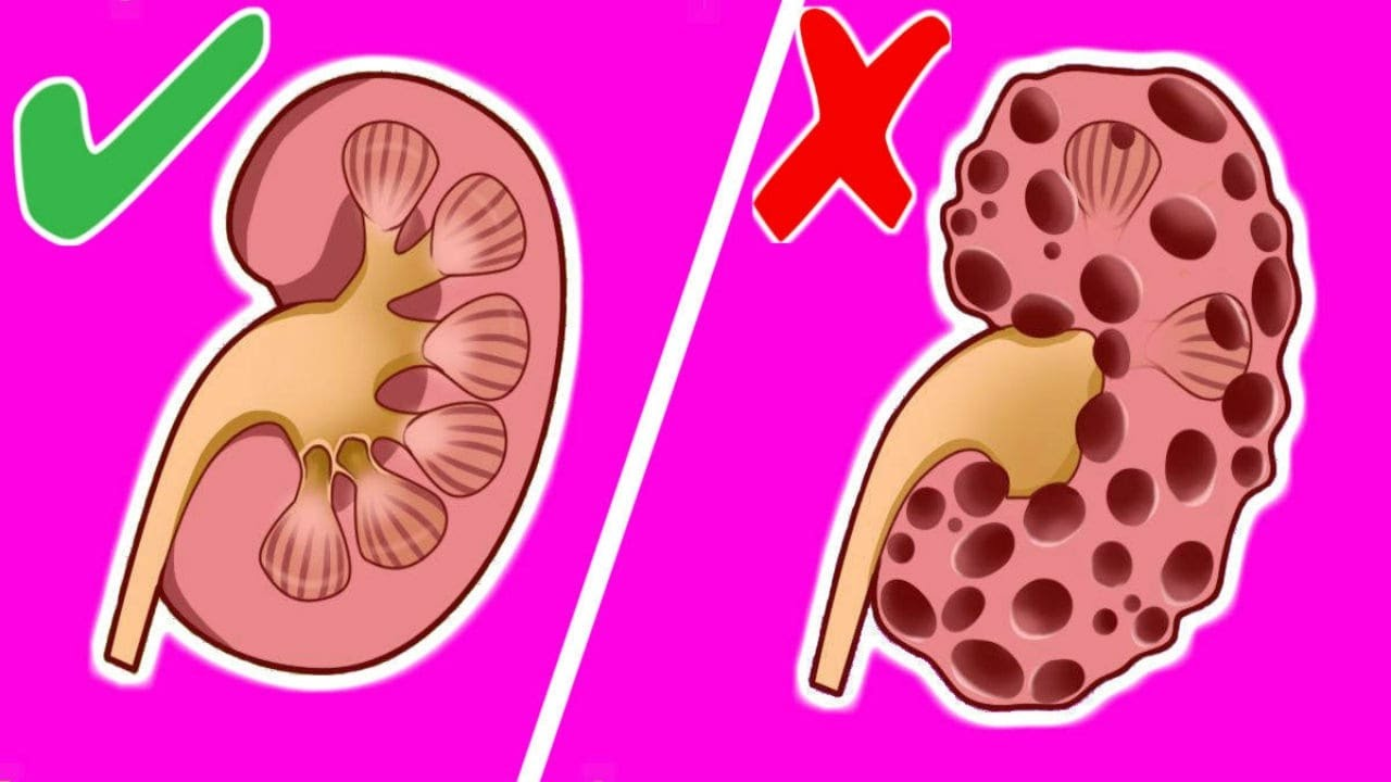 10 Bad Habits That Can Seriously Harm Your Kidneys