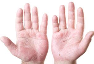 Atopinis dermatitas sukėlėjas grybelis