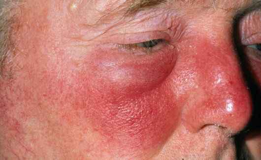 وصفات طبيعية لعلاج مرض الحمرة