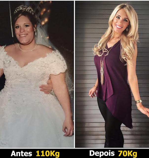 Joana Costa - Antes e depois de 3 meses com SSX.