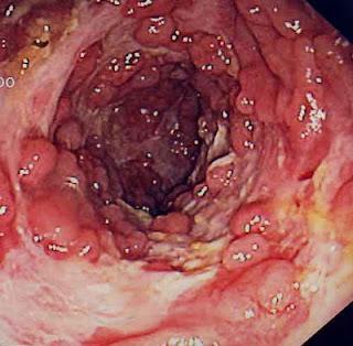 Resultado de imagem para Cancro colorretal