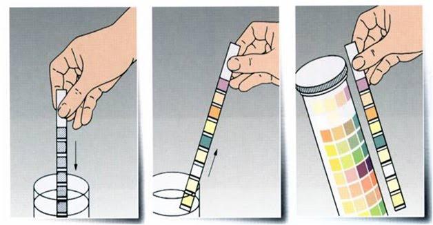 Warna Urin seperti Air Teh – bagian 1