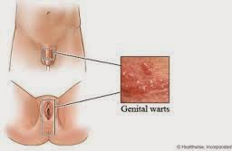 male genital warts and oral sex