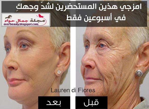 شدى وجهك فى أسبوعين بمزج هذين المكونين بحسب Dr. Oz