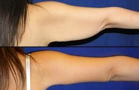 cara mengurangi lemak lengan