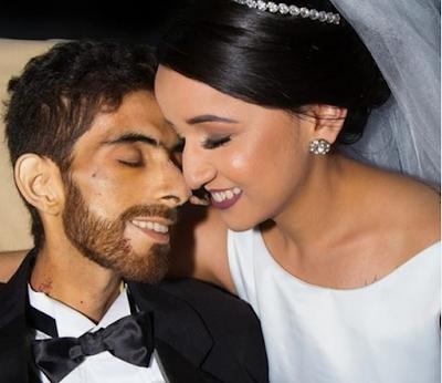 'Vou me lembrar dele feliz', diz viúva de homem que morreu de câncer dias após casamento em hospital de Maceió