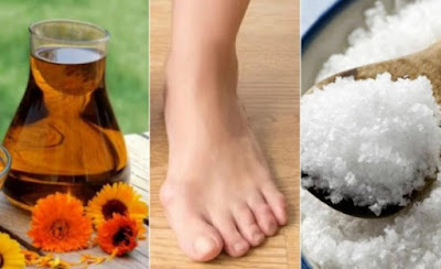 réduire les oignons de pieds