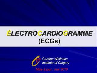 ÉLECTROCARDIOGRAMME (ECGs) .pdf