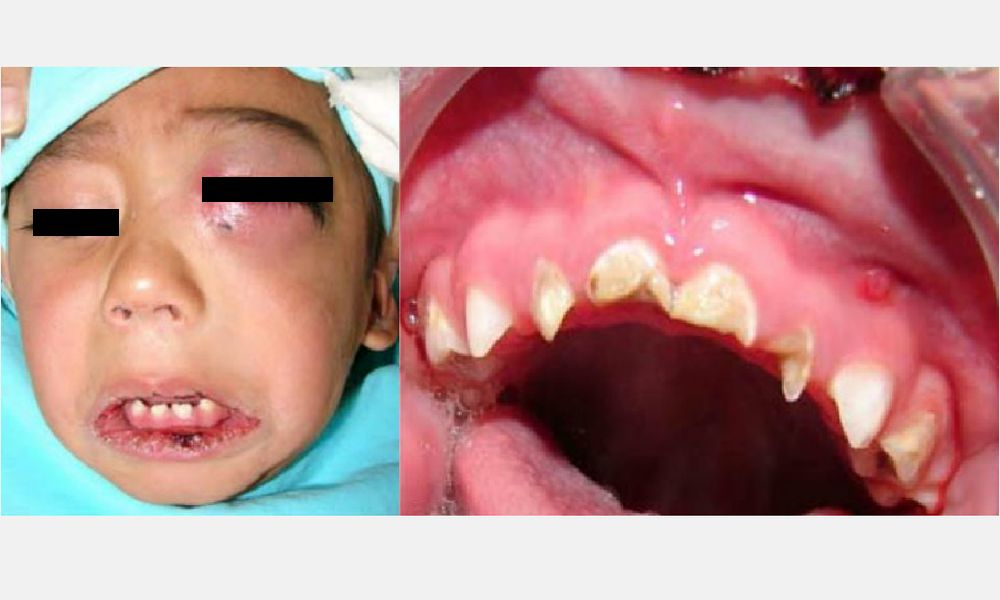 Infecciones Faciales