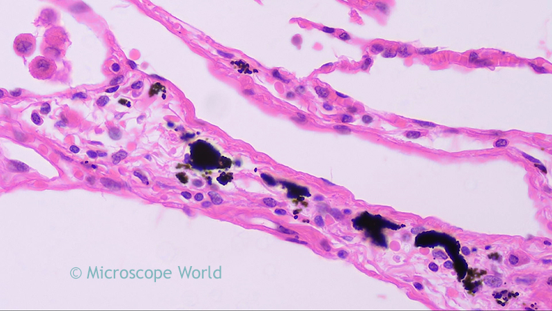microscope world blog: human lungs under the microscope, Muscles