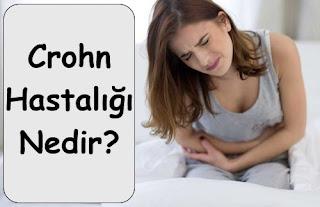 Crohn Hastalığı Nedir