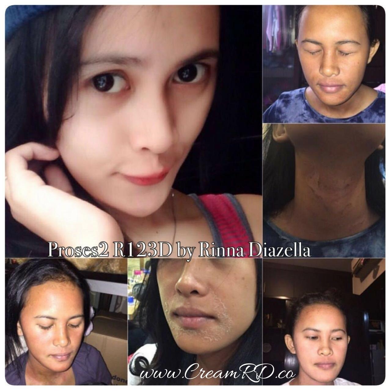 Jual Cream Rd Ori Asli 100 Distributor Rinna Diazella Skincare Testimoni Original